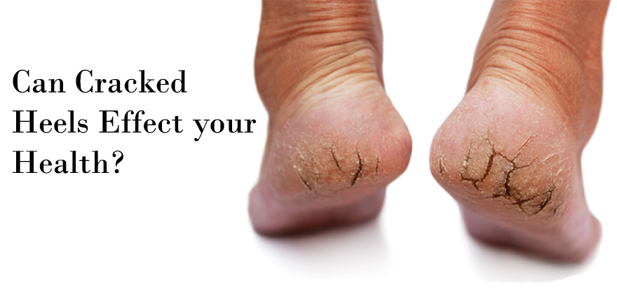Best Natural Moisturizer For Dry Feet